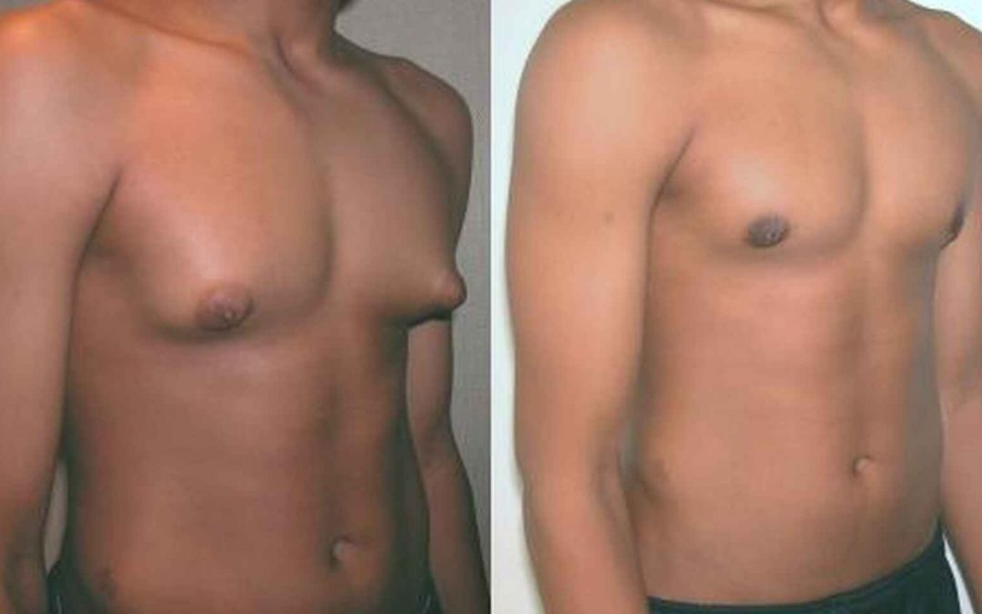 Pechos masculinos ¿Cuándo acudir a la cirugía?