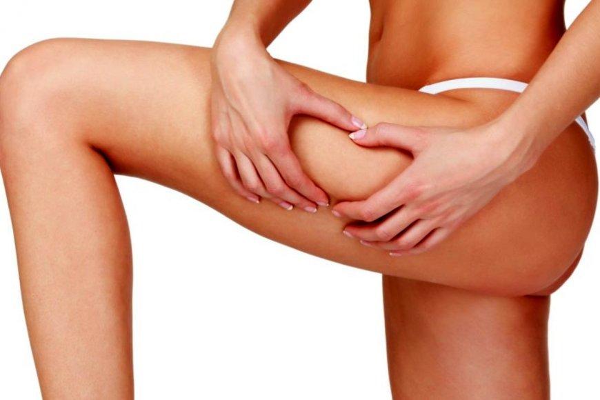 Carboxiterapia: ¿la mejor opción ante la celulitis?