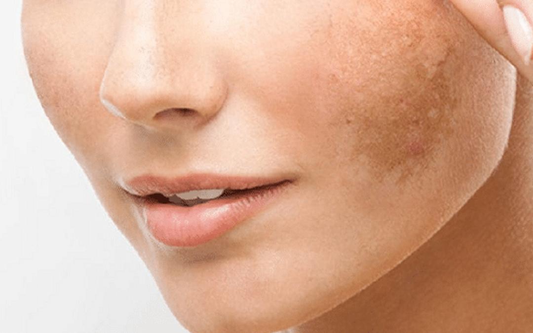 Manchas en la piel ¿qué hacer y cómo remediarlo?