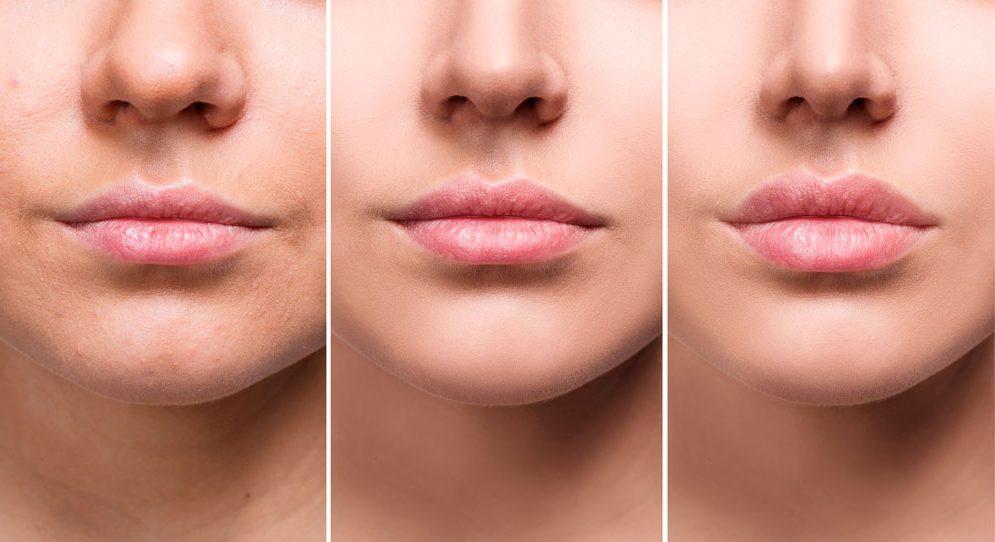 Aumento de labios: ¡lo que debes saber!
