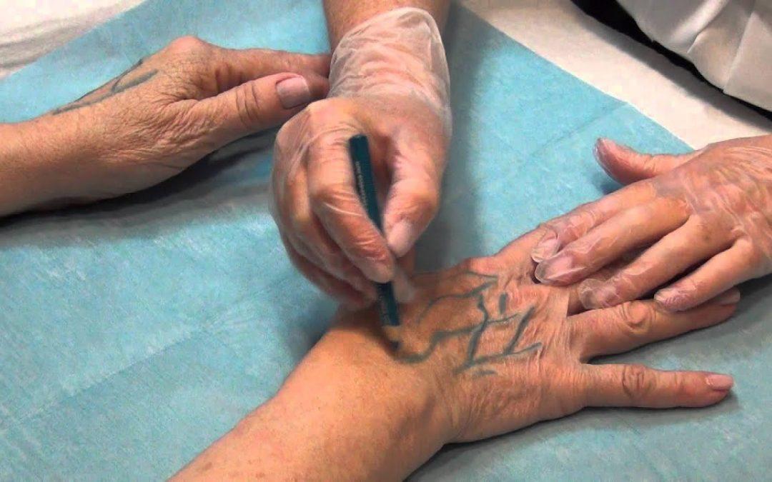 8 técnicas para el rejuvenecimiento de manos